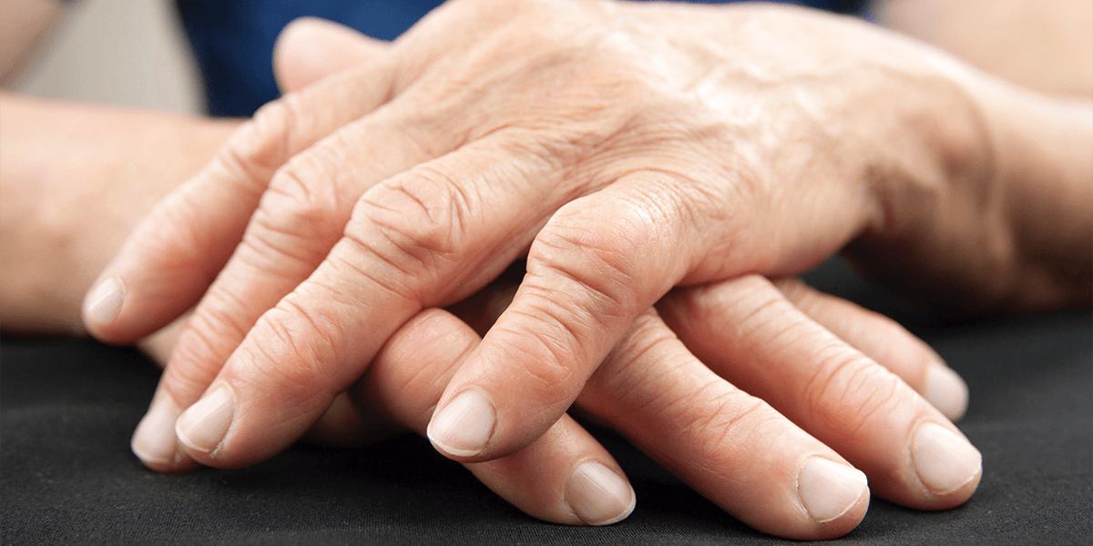 皮膚筋炎の病態予測が「指の皮疹」から可能に、病理組織解析で裏付け ...